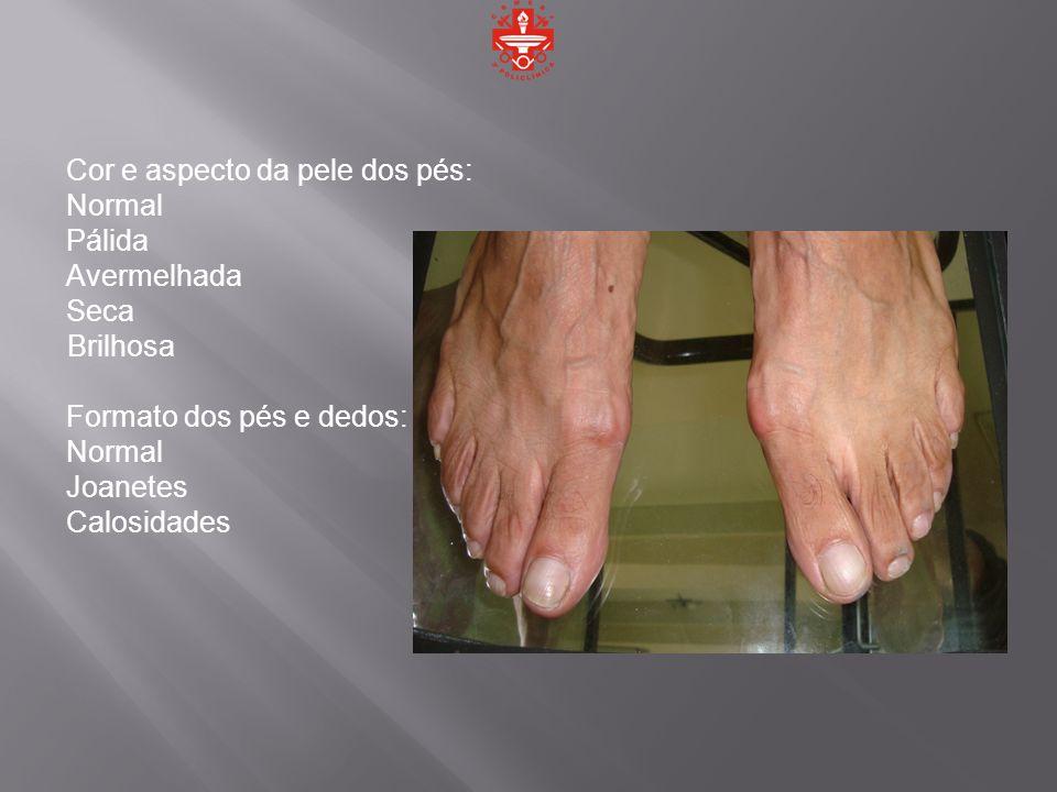 Cor e aspecto da pele dos pés:
