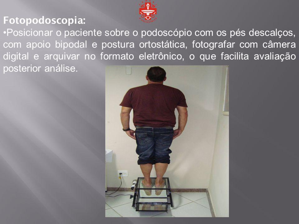 Fotopodoscopia: