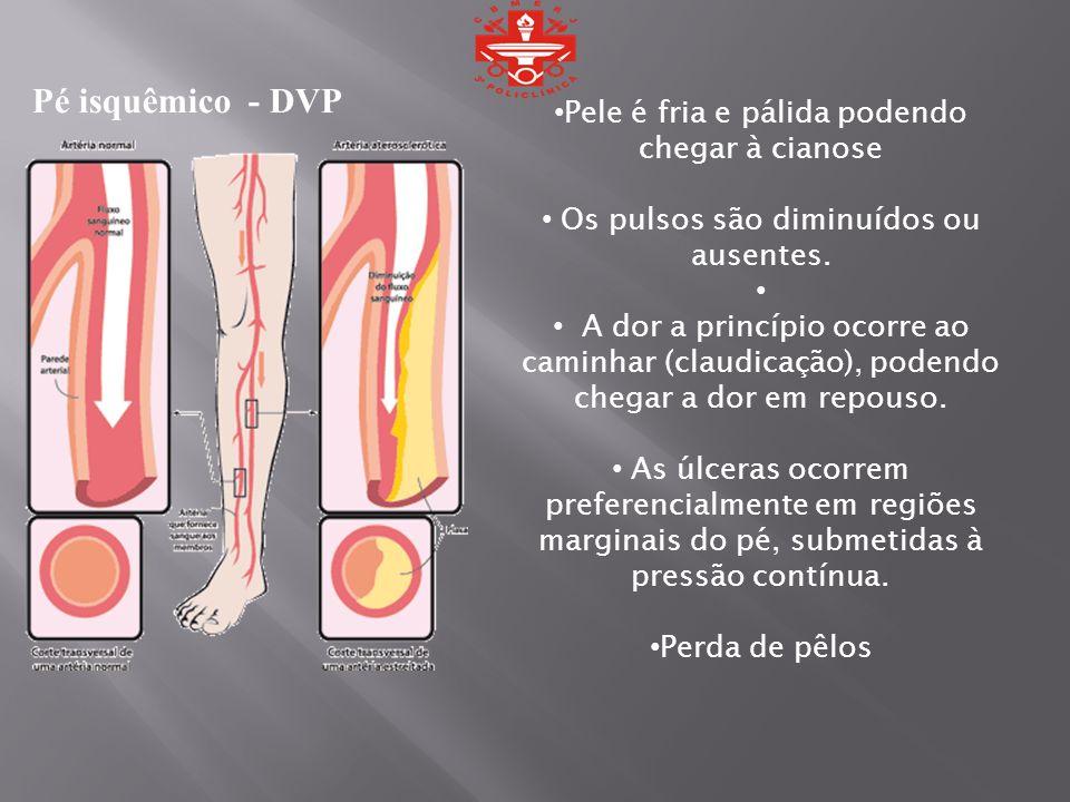 Pé isquêmico - DVP Pele é fria e pálida podendo chegar à cianose