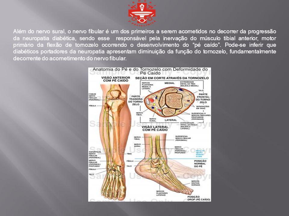 Além do nervo sural, o nervo fibular é um dos primeiros a serem acometidos no decorrer da progressão da neuropatia diabética, sendo esse responsável pela inervação do músculo tibial anterior, motor primário da flexão de tornozelo ocorrendo o desenvolvimento do pé caído .