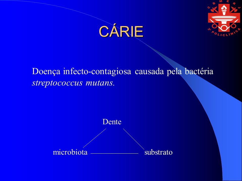 CÁRIE Doença infecto-contagiosa causada pela bactéria streptococcus mutans.