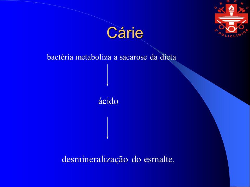 Cárie ácido desmineralização do esmalte.