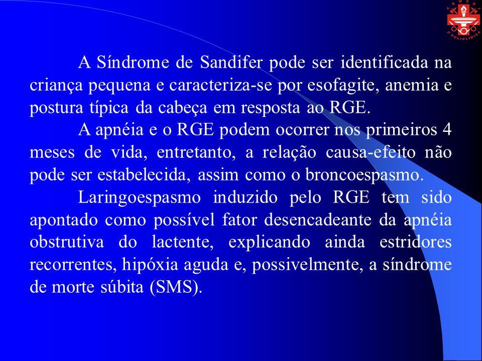 A Síndrome de Sandifer pode ser identificada na criança pequena e caracteriza-se por esofagite, anemia e postura típica da cabeça em resposta ao RGE.