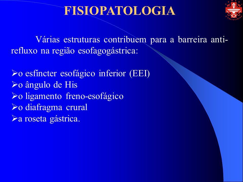 FISIOPATOLOGIA Várias estruturas contribuem para a barreira anti-refluxo na região esofagogástrica: