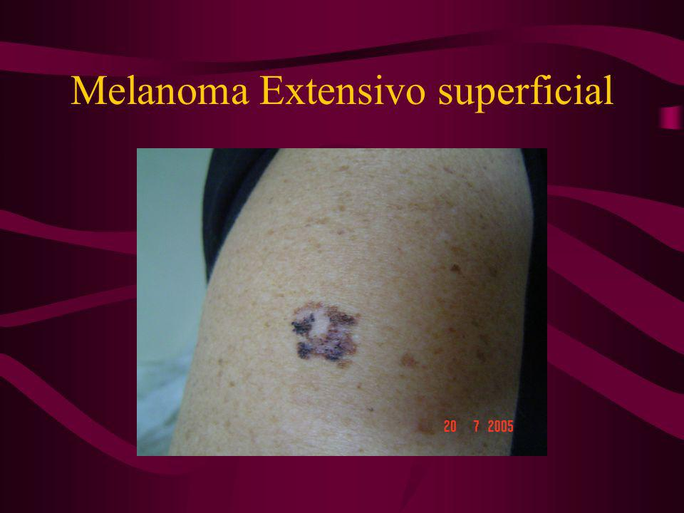 Melanoma Extensivo superficial