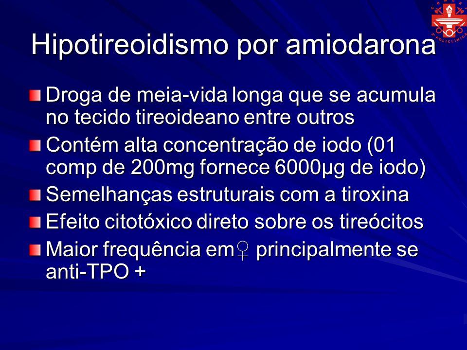 Hipotireoidismo por amiodarona