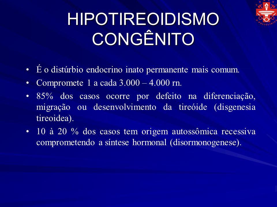 HIPOTIREOIDISMO CONGÊNITO