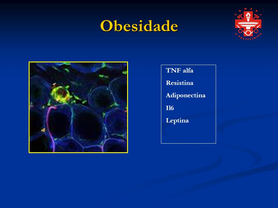 Obesidade TNF alfa Resistina Adiponectina Il6 Leptina