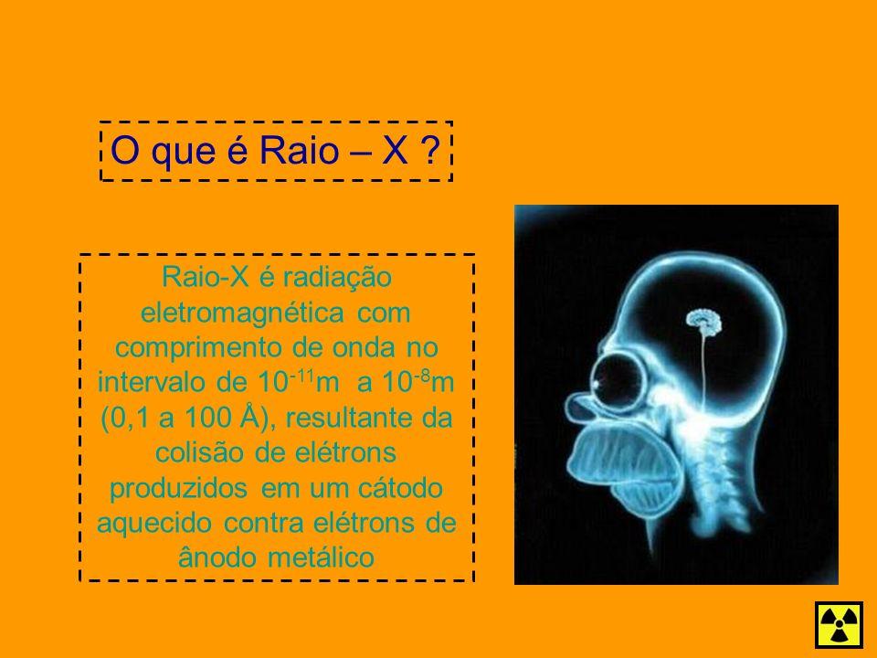 O que é Raio – X Raio-X é radiação eletromagnética com