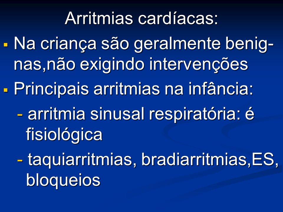 Arritmias cardíacas:Na criança são geralmente benig- nas,não exigindo intervenções. Principais arritmias na infância: