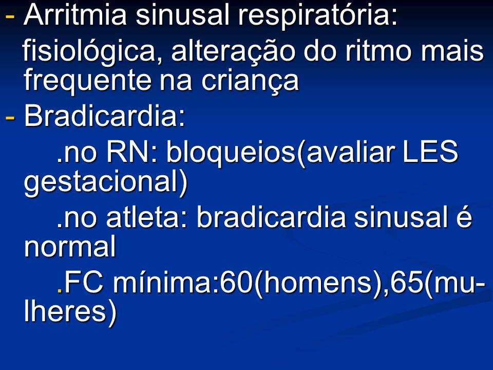 - Arritmia sinusal respiratória: