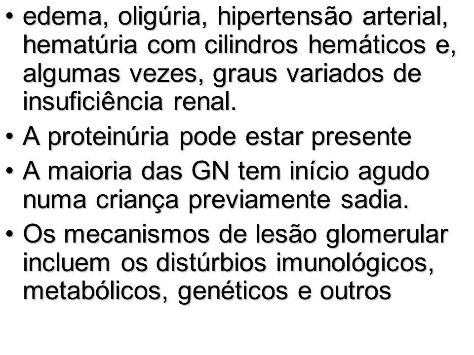 edema, oligúria, hipertensão arterial, hematúria com cilindros hemáticos e, algumas vezes, graus variados de insuficiência renal.
