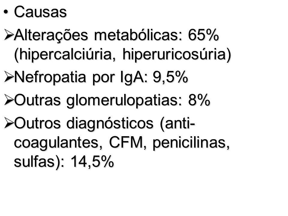 Causas Alterações metabólicas: 65% (hipercalciúria, hiperuricosúria) Nefropatia por IgA: 9,5% Outras glomerulopatias: 8%