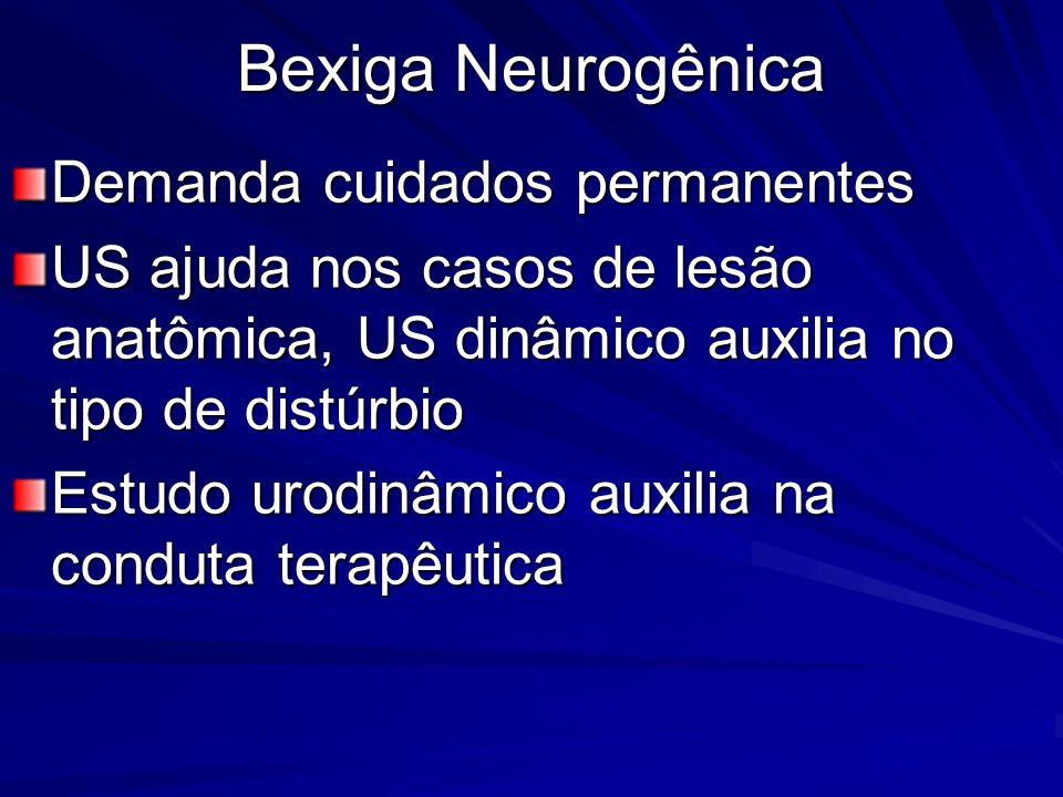 Bexiga Neurogênica Demanda cuidados permanentes