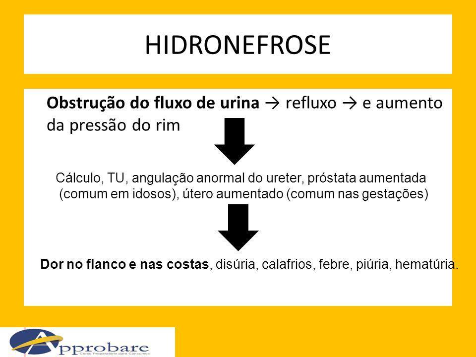 HIDRONEFROSE Obstrução do fluxo de urina → refluxo → e aumento da pressão do rim. Cálculo, TU, angulação anormal do ureter, próstata aumentada.