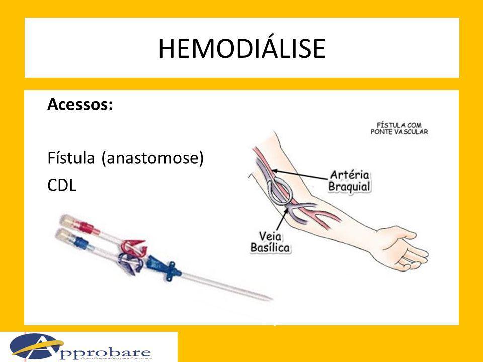 HEMODIÁLISE Acessos: Fístula (anastomose) CDL
