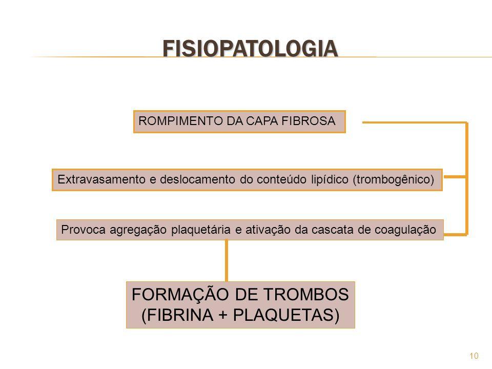 FISIOPATOLOGIA FORMAÇÃO DE TROMBOS (FIBRINA + PLAQUETAS)
