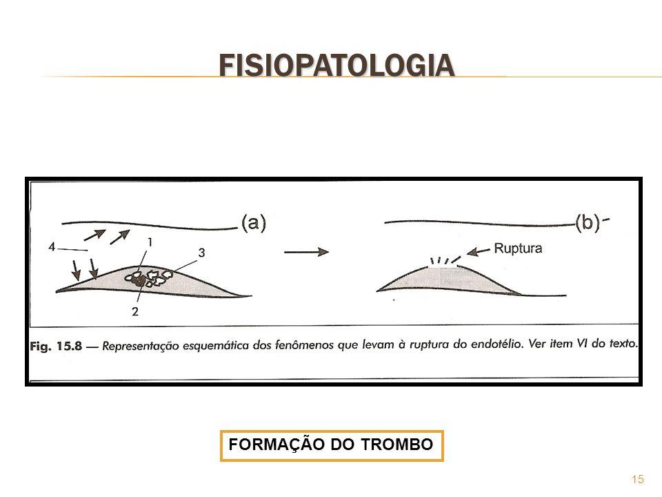 FISIOPATOLOGIA FORMAÇÃO DO TROMBO