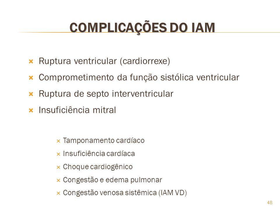 COMPLICAÇÕES DO IAM Ruptura ventricular (cardiorrexe)