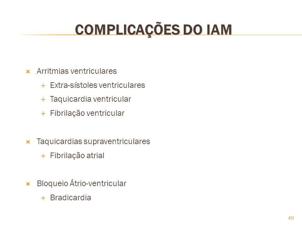 COMPLICAÇÕES DO IAM Arritmias ventriculares