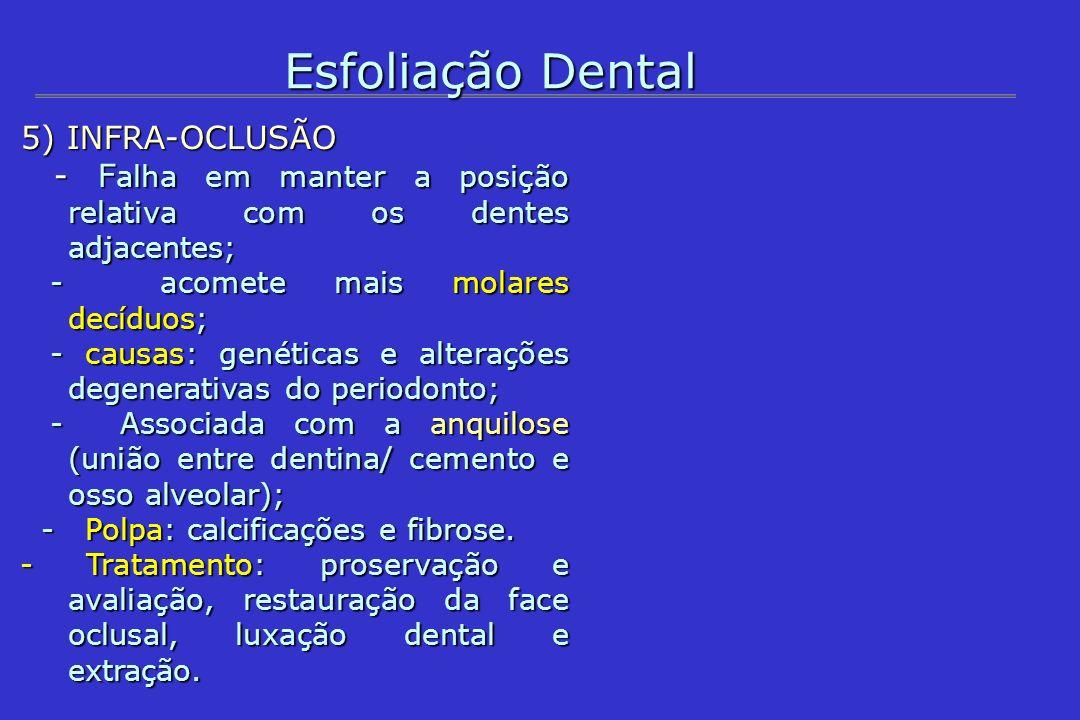 Esfoliação Dental 5) INFRA-OCLUSÃO