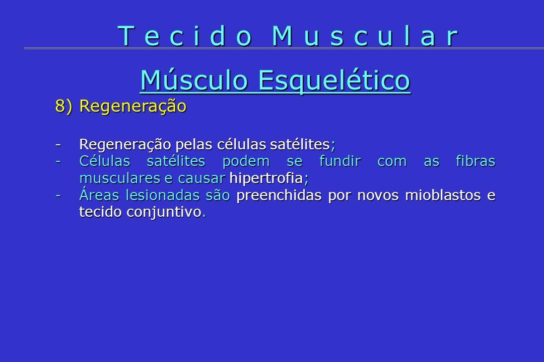 T e c i d o M u s c u l a r Músculo Esquelético 8) Regeneração