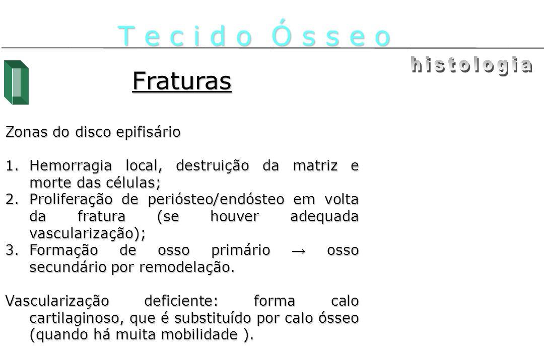 T e c i d o Ó s s e o histologia Fraturas Zonas do disco epifisário