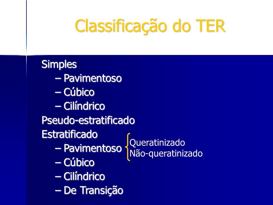 Classificação do TER Simples Pavimentoso Cúbico Cilíndrico