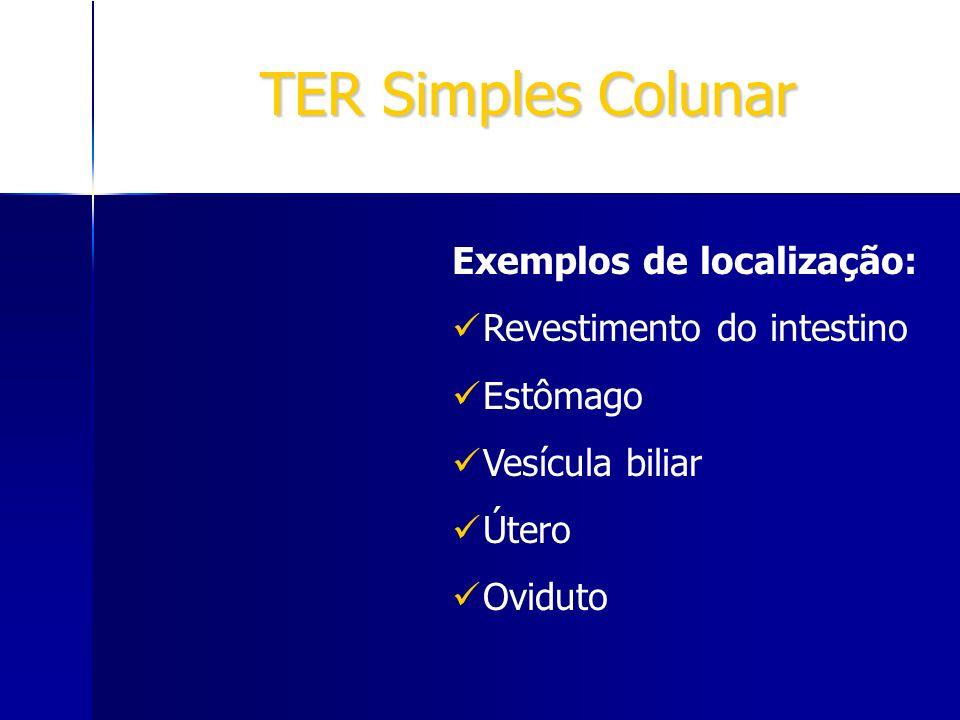 TER Simples Colunar Exemplos de localização: Revestimento do intestino