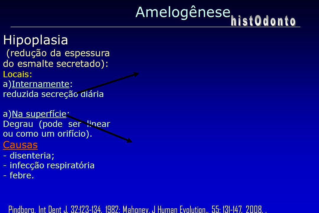 Amelogênese histOdonto Hipoplasia Causas