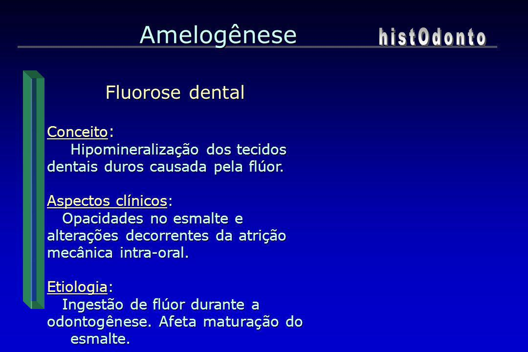 Amelogênese histOdonto Fluorose dental Conceito: