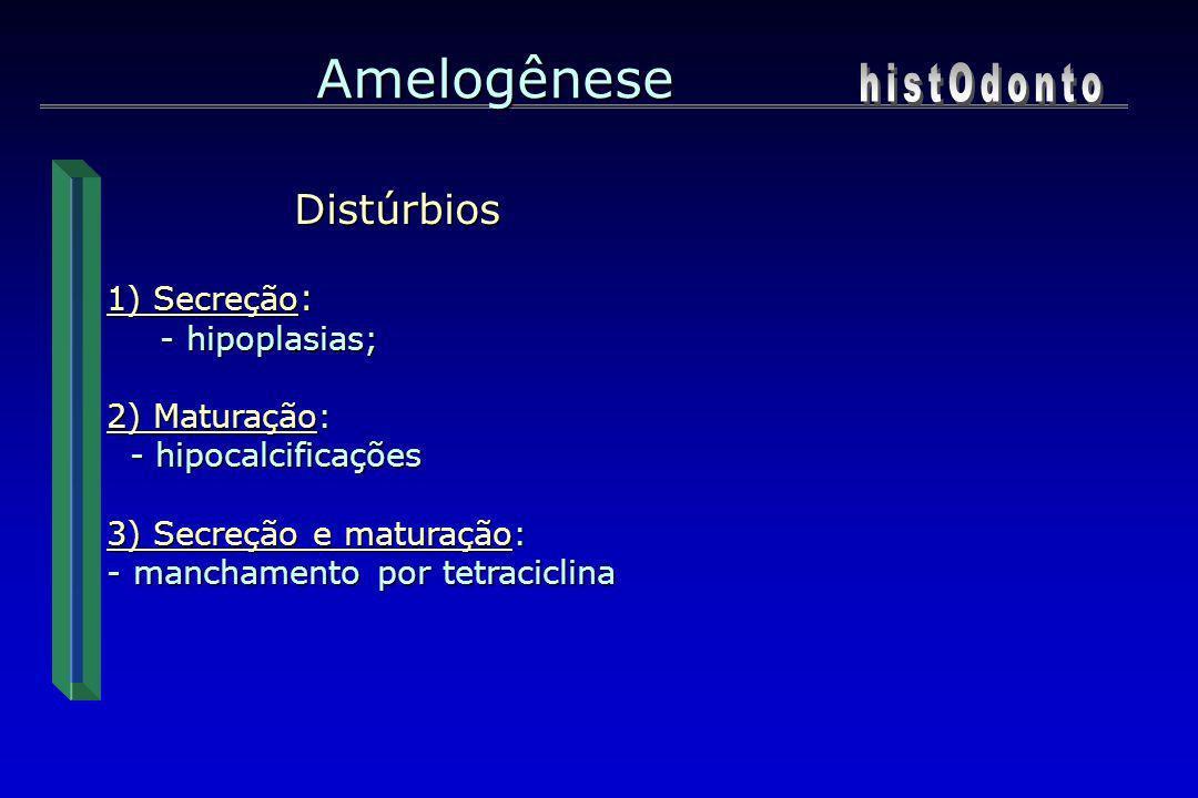 Amelogênese histOdonto Distúrbios 1) Secreção: - hipoplasias;