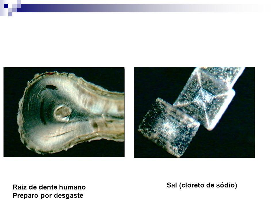 Sal (cloreto de sódio) Raiz de dente humano Preparo por desgaste