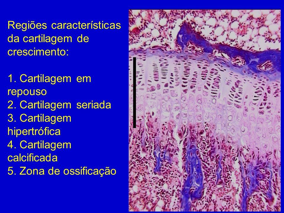 Regiões características da cartilagem de crescimento: 1