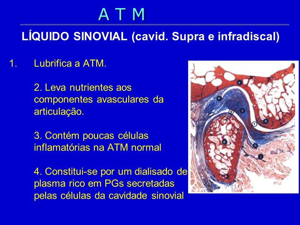 LÍQUIDO SINOVIAL (cavid. Supra e infradiscal)