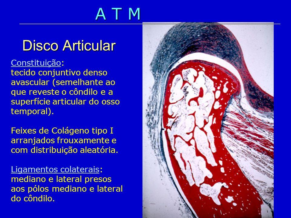A T M Disco Articular.