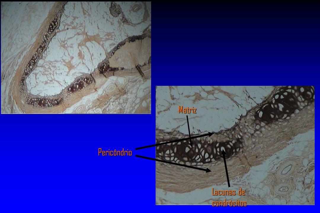Matriz Pericôndrio Lacunas de condrócitos