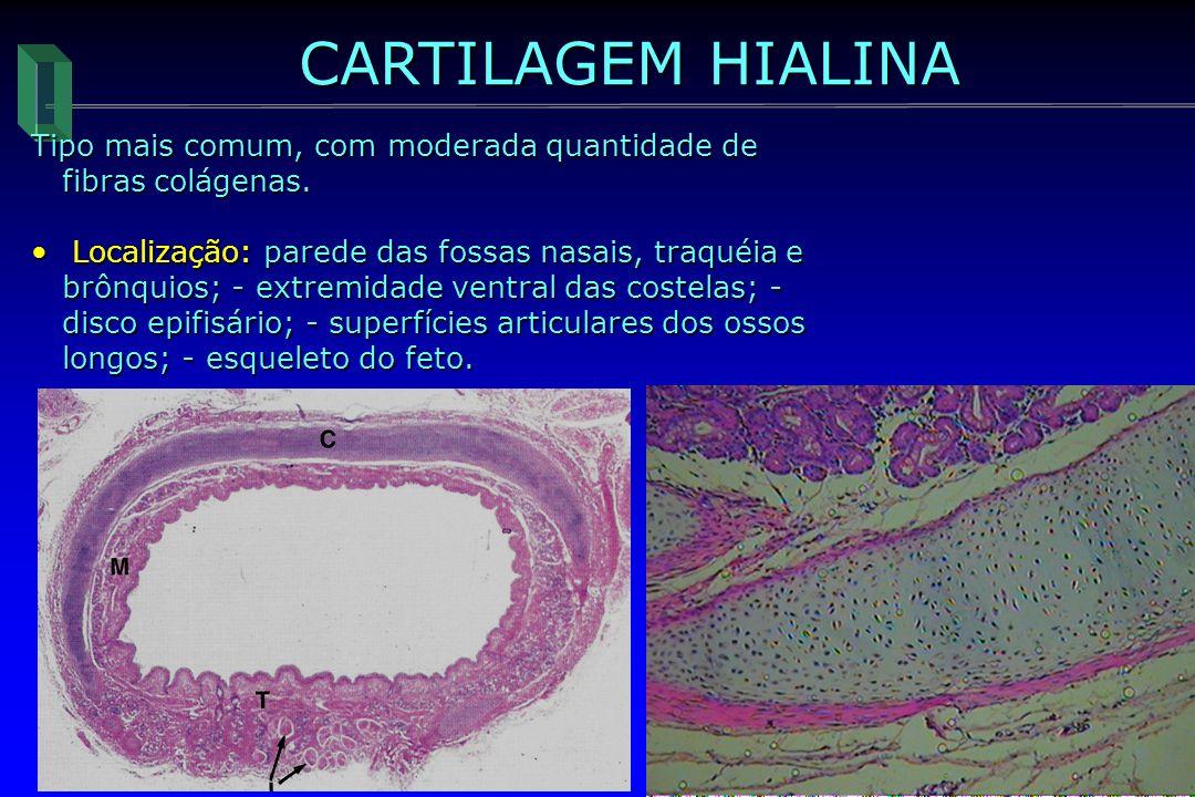 CARTILAGEM HIALINA Tipo mais comum, com moderada quantidade de fibras colágenas.