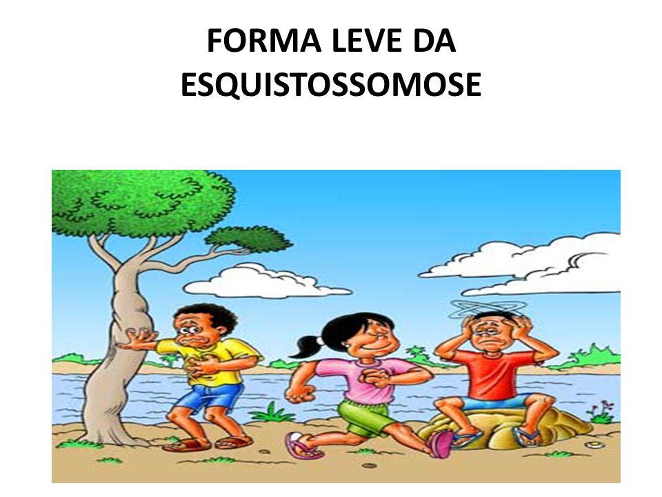 FORMA LEVE DA ESQUISTOSSOMOSE