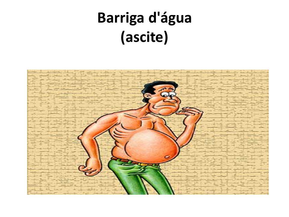 Barriga d água (ascite)