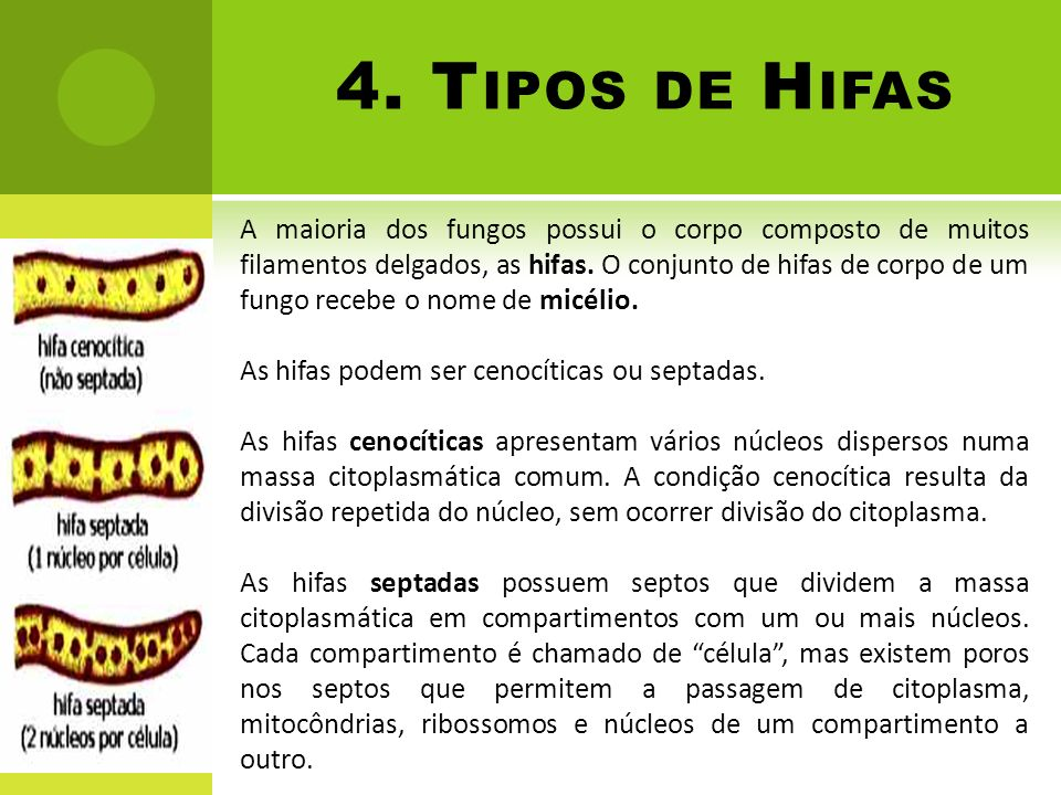 4. Tipos de Hifas