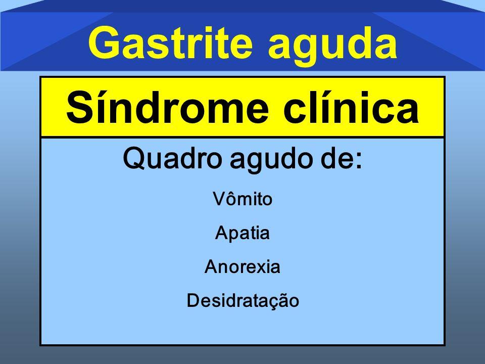 Gastrite aguda Síndrome clínica