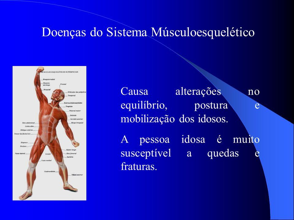 Doenças do Sistema Músculoesquelético