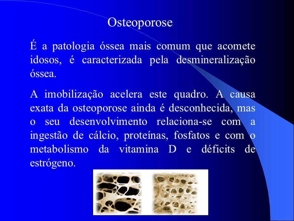 Osteoporose É a patologia óssea mais comum que acomete idosos, é caracterizada pela desmineralização óssea.