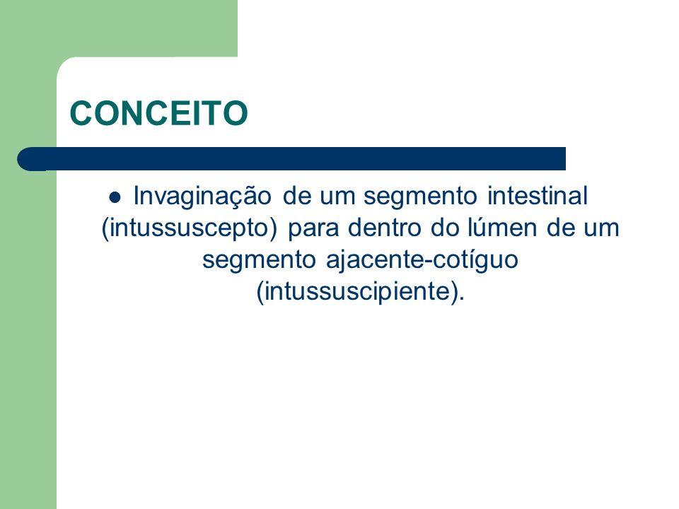 CONCEITOInvaginação de um segmento intestinal (intussuscepto) para dentro do lúmen de um segmento ajacente-cotíguo (intussuscipiente).