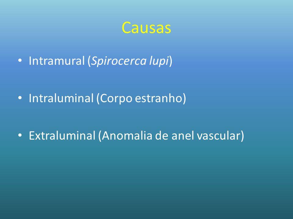 Causas Intramural (Spirocerca lupi) Intraluminal (Corpo estranho)