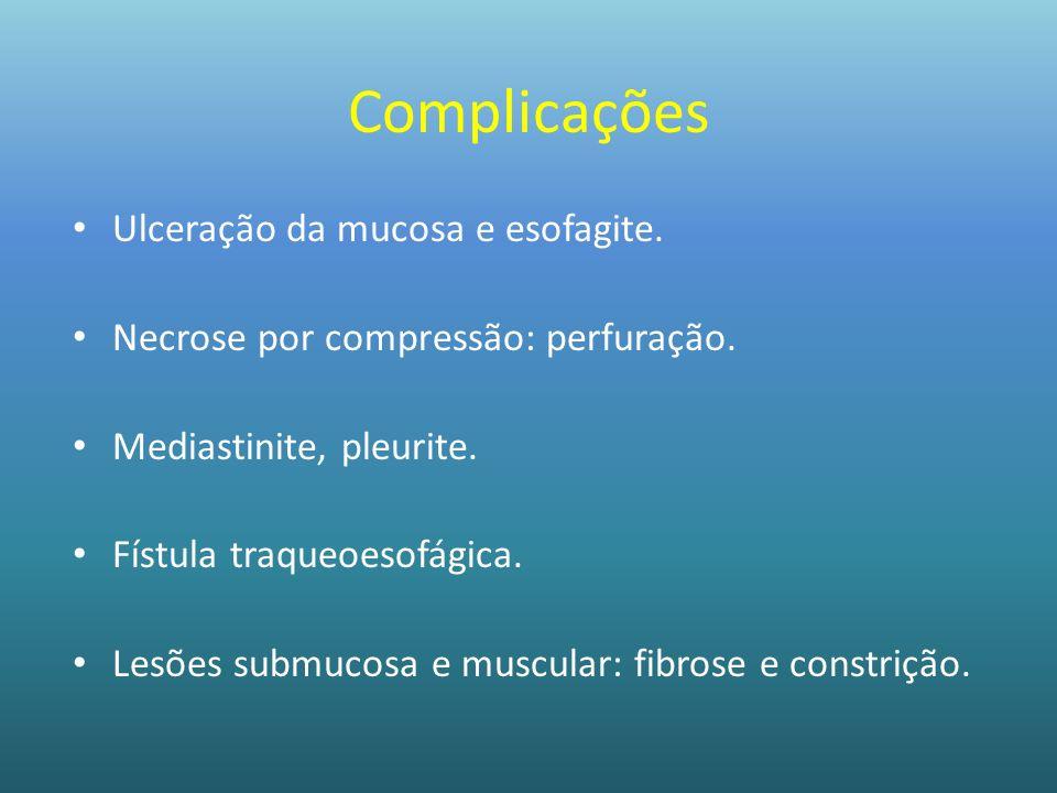 Complicações Ulceração da mucosa e esofagite.