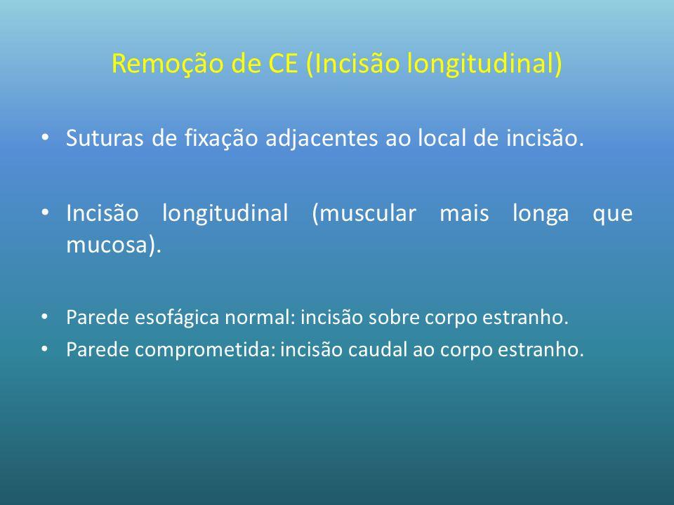 Remoção de CE (Incisão longitudinal)