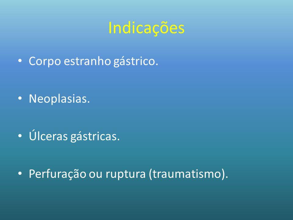 Indicações Corpo estranho gástrico. Neoplasias. Úlceras gástricas.