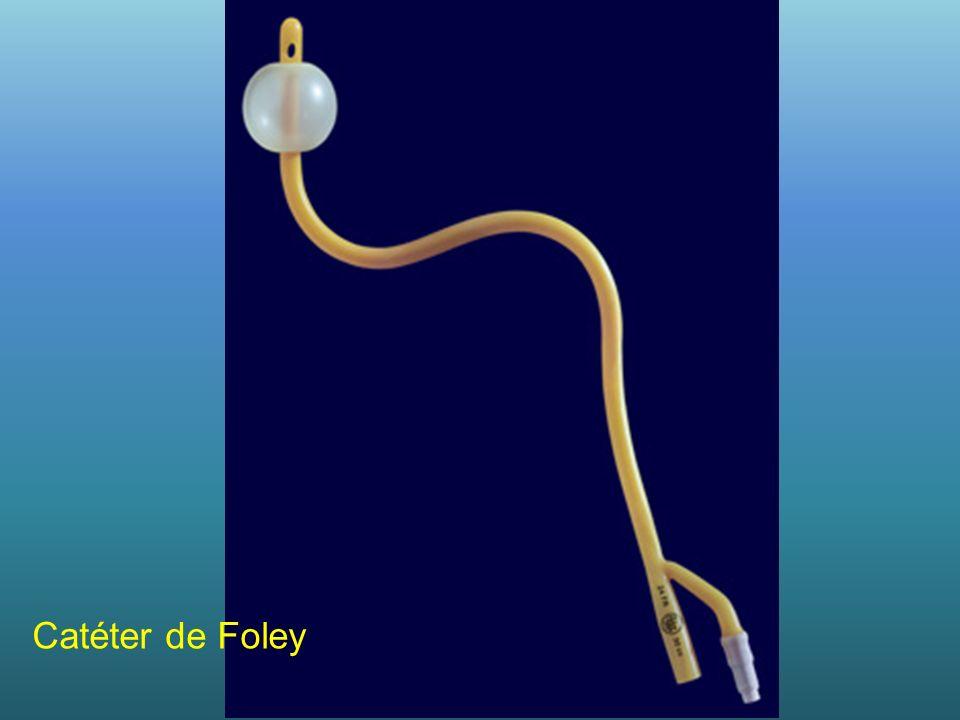 Catéter de Foley